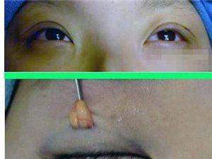 割双眼皮全过程(胆小莫入)(图解)