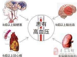让您了解高血压形成原因,你懂吗?