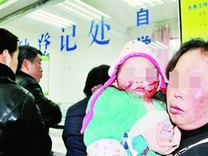1岁女童不幸被自家狗咬伤脸