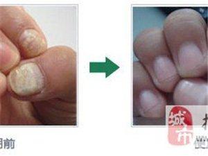 张氏灰指甲康复中心